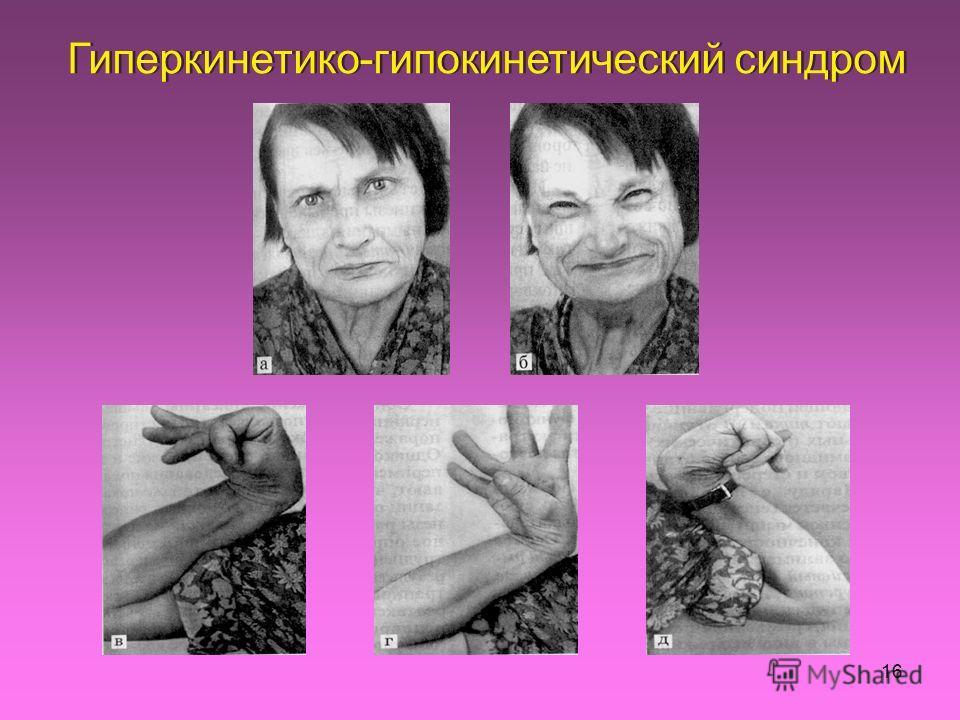 16 Гиперкинетико-гипокинетический синдром