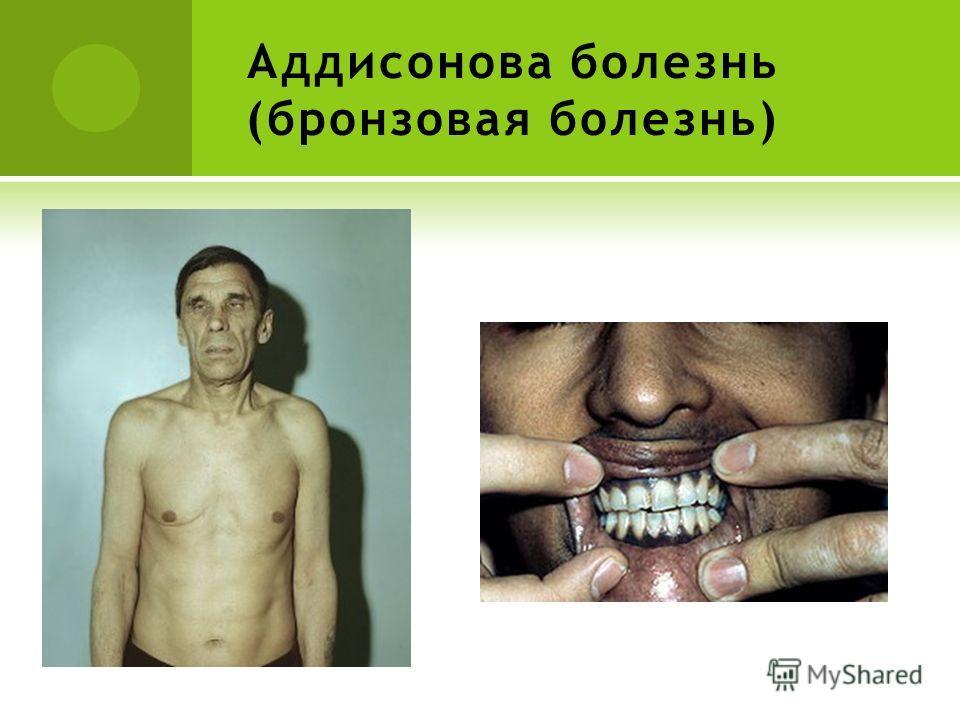 Аддисонова болезнь (бронзовая болезнь)