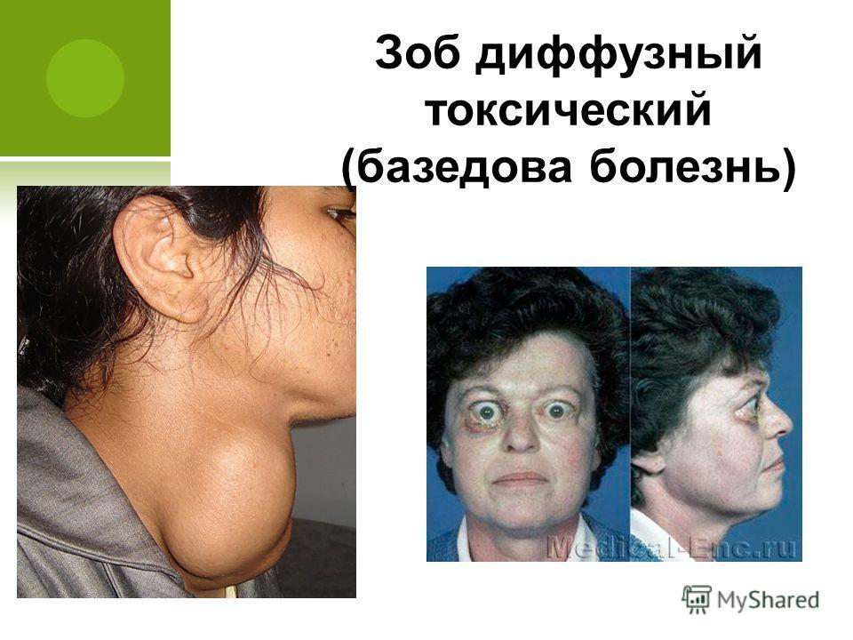 Зоб диффузный токсический (базедова болезнь)