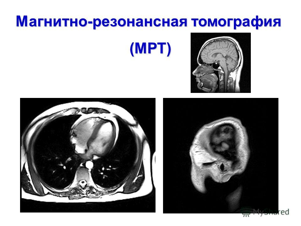 Магнитно-резонансная томография (МРТ)