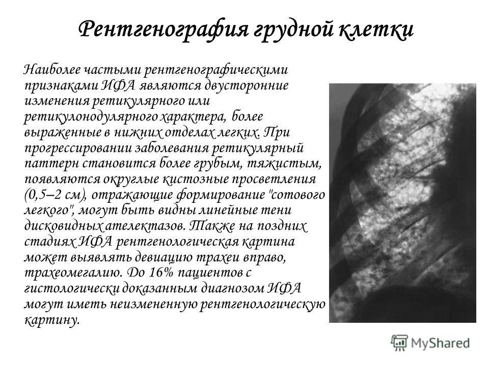 Рентгенография грудной клетки Наиболее частыми рентгенографическими признаками ИФА являются двусторонние изменения ретикулярного или ретикулонодулярного характера, более выраженные в нижних отделах легких. При прогрессировании заболевания ретикулярны