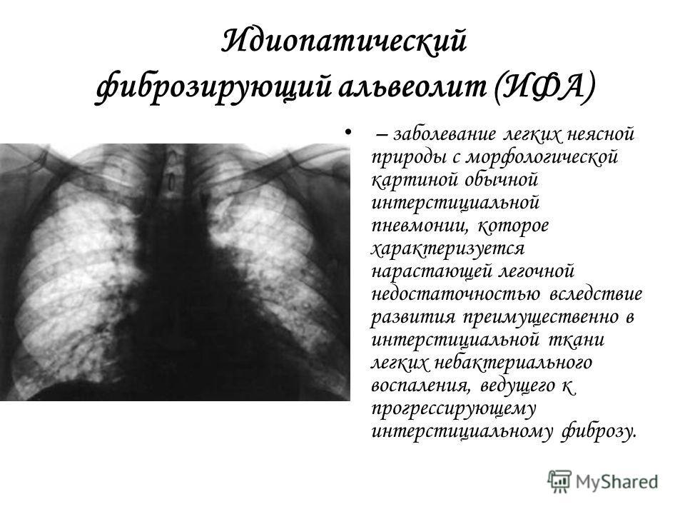 Идиопатический фиброзирующий альвеолит (ИФА) – заболевание легких неясной природы с морфологической картиной обычной интерстициальной пневмонии, которое характеризуется нарастающей легочной недостаточностью вследствие развития преимущественно в интер