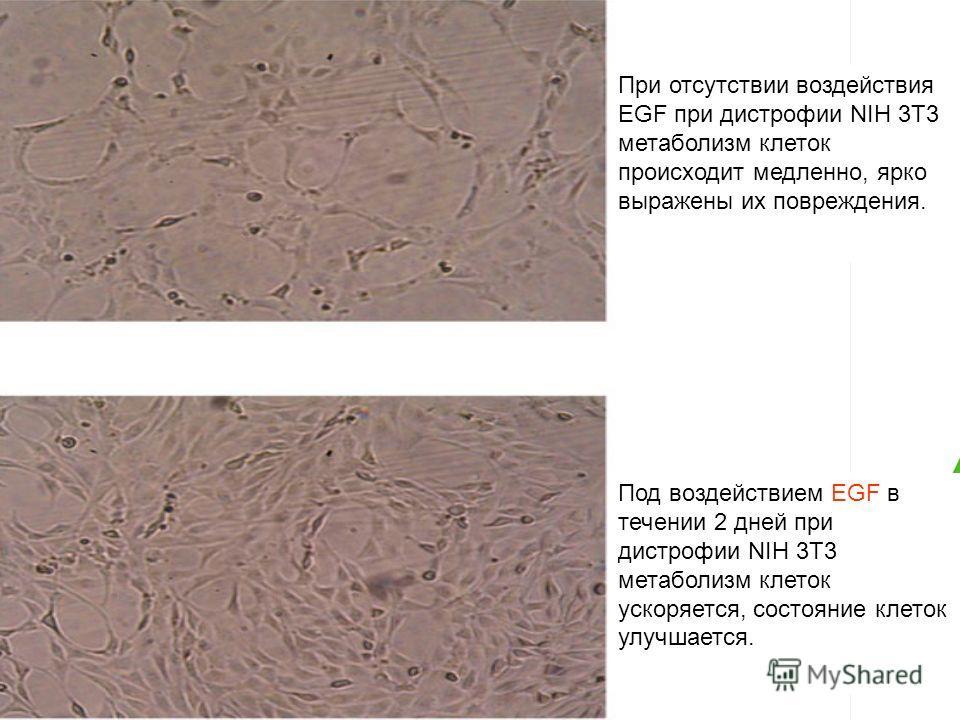При отсутствии воздействия EGF при дистрофии NIH 3T3 метаболизм клеток происходит медленно, ярко выражены их повреждения. Под воздействием EGF в течении 2 дней при дистрофии NIH 3T3 метаболизм клеток ускоряется, состояние клеток улучшается.