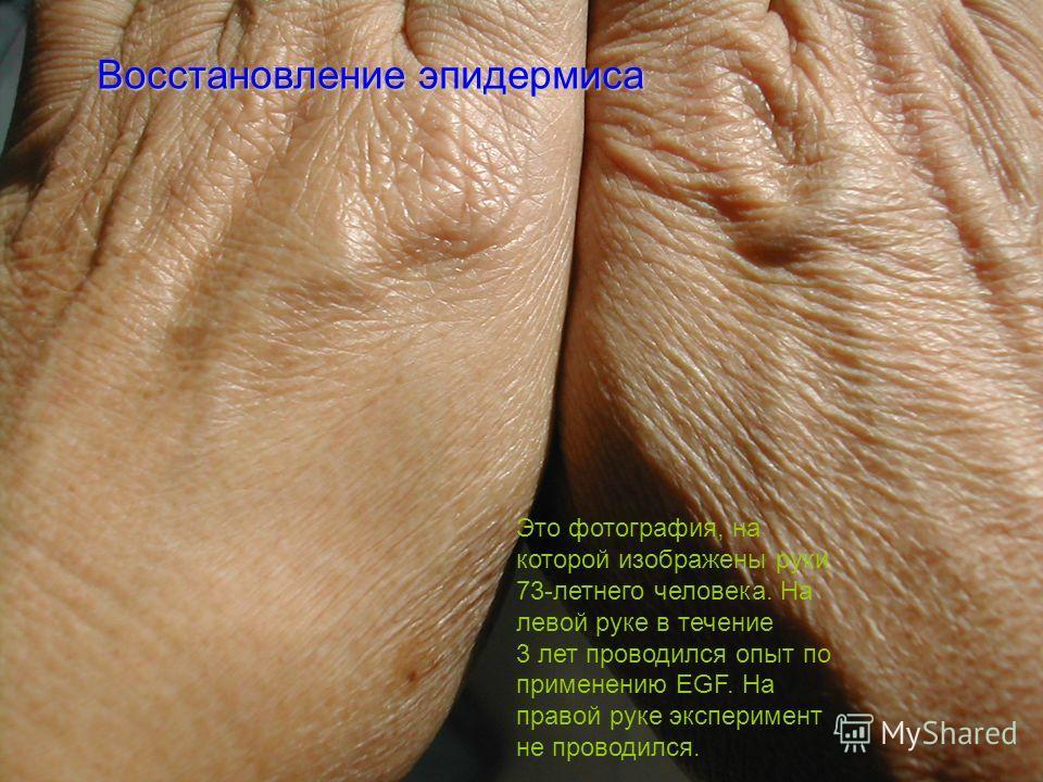 Это фотография, на которой изображены руки 73-летнего человека. На левой руке в течение 3 лет проводился опыт по применению EGF. На правой руке эксперимент не проводился. Восстановление эпидермиса