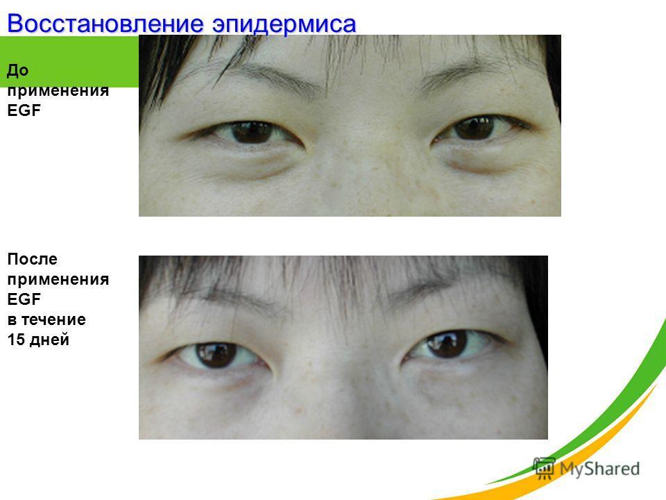 До применения EGF После применения EGF в течение 15 дней Восстановление эпидермиса