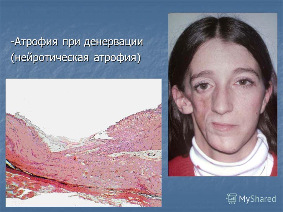 -Атрофия при денервации (нейротическая атрофия)