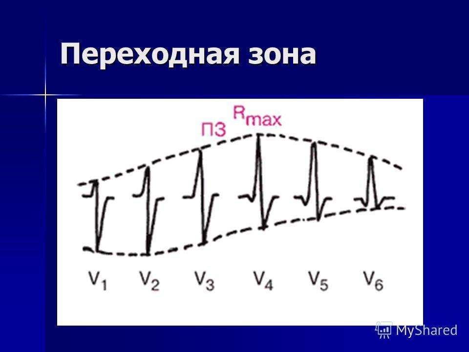 ЧСС ЧСС = 60 / RR ЧСС = 60 / RR При неправильном (нерегулярном) ритме ЧСС подсчитывается минимум за 3 интервала RR, соответственно делить уже надо не 60, а 180 (в три раза больше). Т.е. ЧСС = 180/RR+RR+RR При неправильном (нерегулярном) ритме ЧСС под