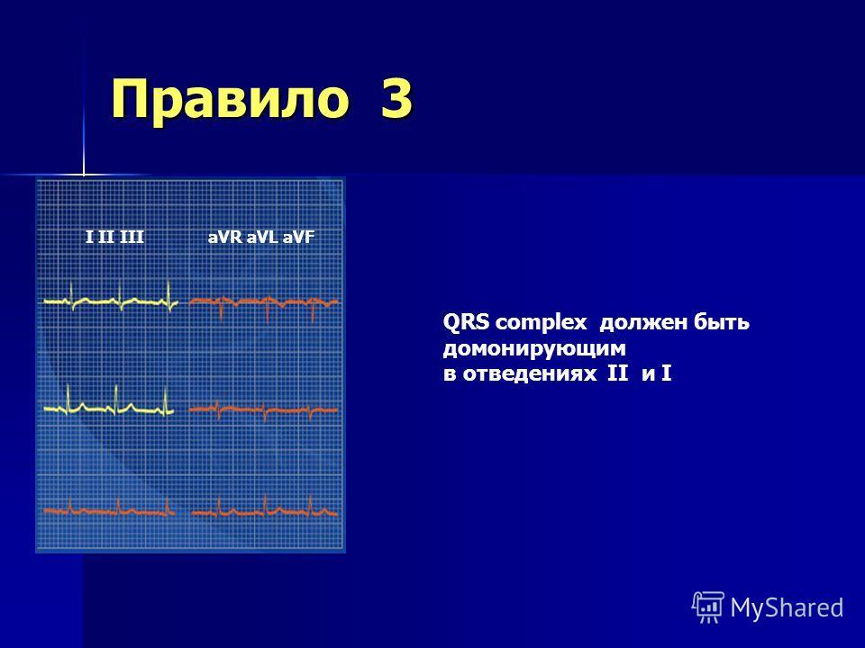Правило 2 Millivolts Milliseconds 0200400600 -0.5 0 0.5 1.0 QRS P R T Q S Ширина комплекса QRS должна быть меньше 0,10 секунд или от 3 до 5 мм
