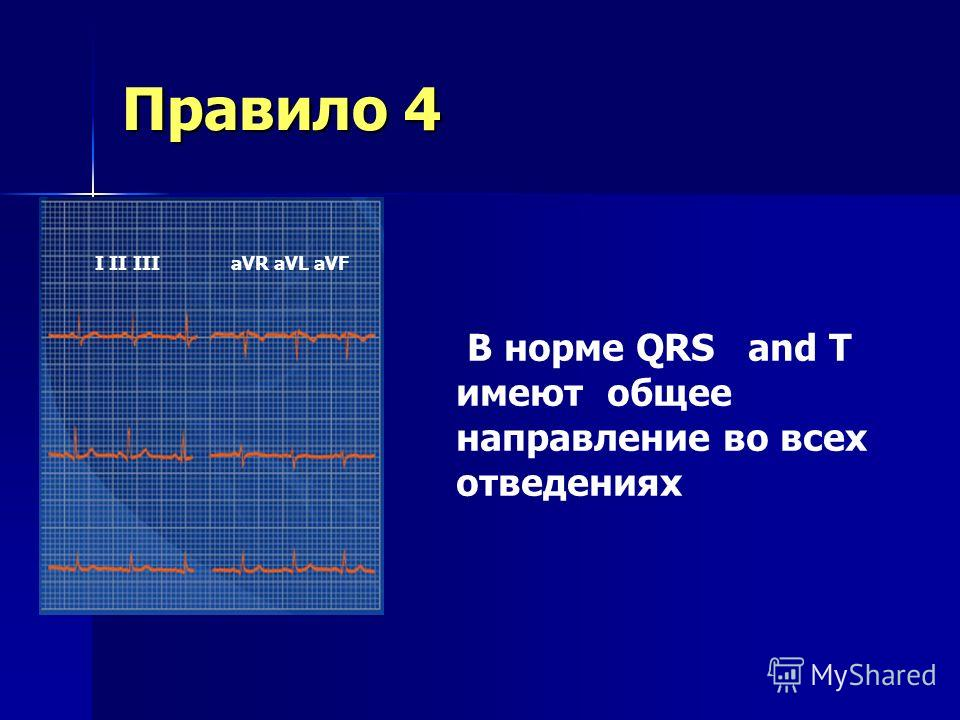 Правило 3 I II III aVR aVL aVF QRS complex должен быть домонирующим в отведениях II и I