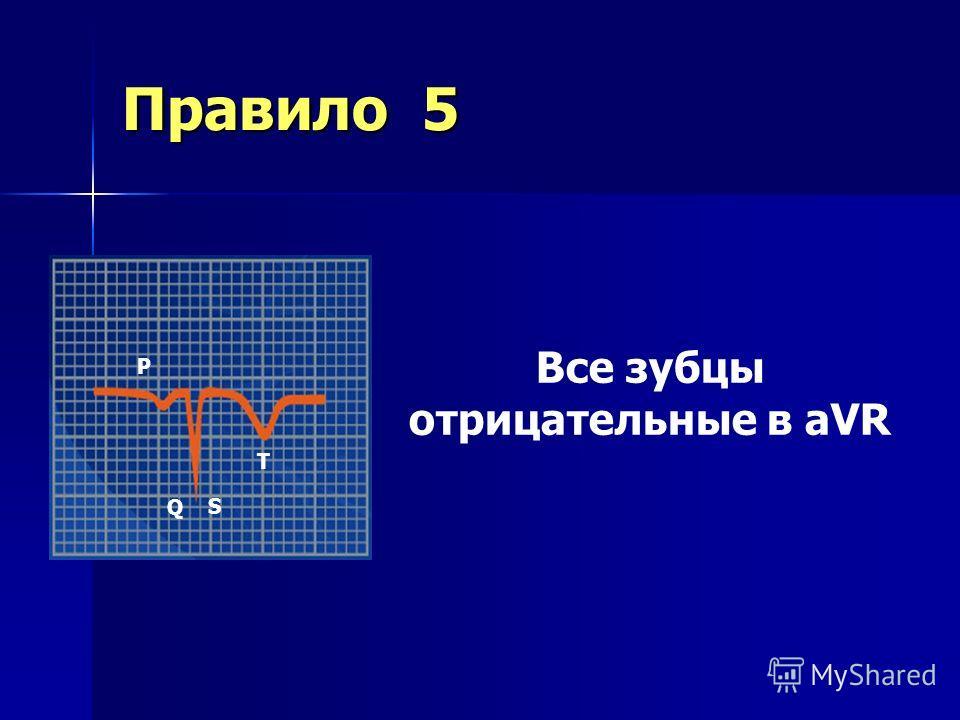 Правило 4 I II III aVR aVL aVF В норме QRS and T имеют общее направление во всех отведениях