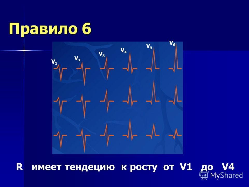 Правило 5 P Q T S Все зубцы отрицательные в aVR