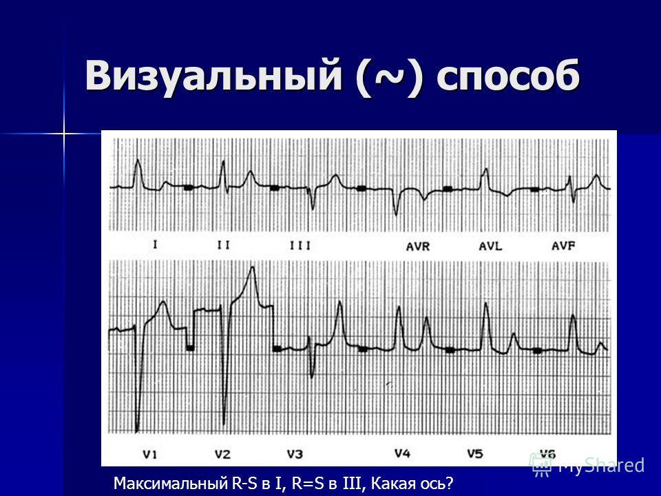 Визуальный (~) способ Найти отведение с самой большой разницей R – S (ось этого отведения будет примерно соответствовать сагиттальной электрической оси сердца) Найти отведение с самой большой разницей R – S (ось этого отведения будет примерно соответ