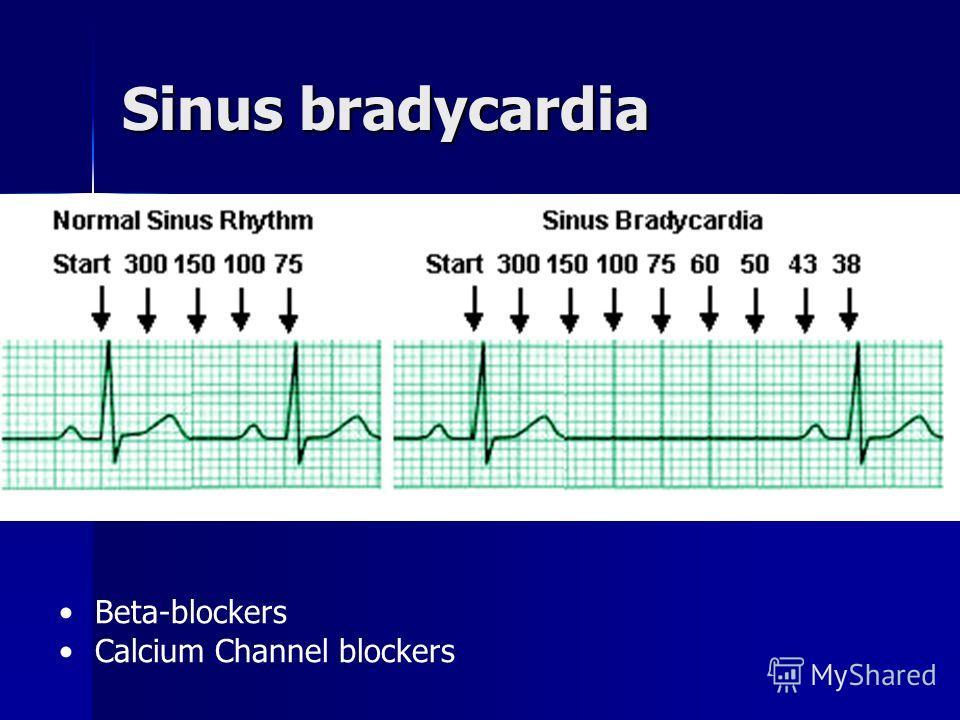 Sinus tachycardia Awake patient ( + Hypertension) Hypovolemia Hypoxia Hyperthyroidism
