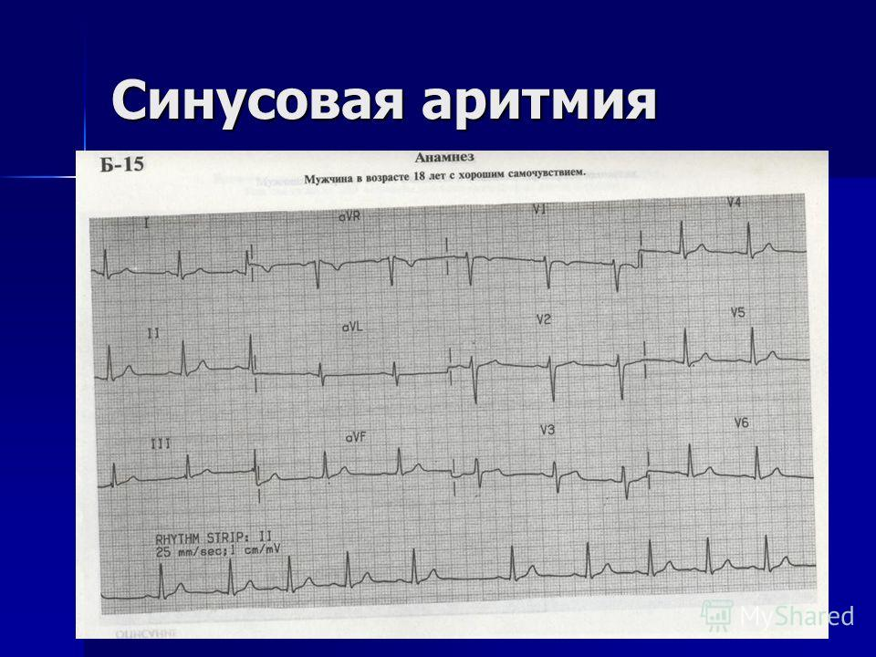 Sinus bradycardia Beta-blockers Calcium Channel blockers