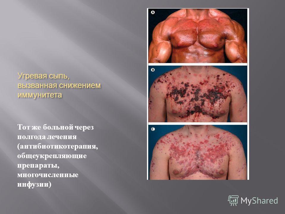 Угревая сыпь, вызванная снижением иммунитета Тот же больной через полгода лечения ( антибиотикотерапия, общеукрепляющие препараты, многочисленные инфузии )