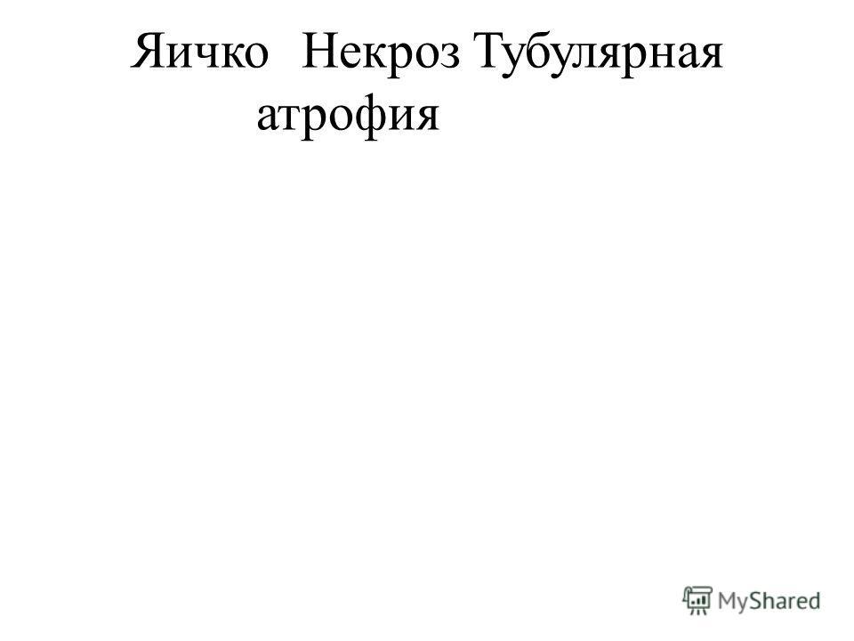 ЯичкоНекрозТубулярная атрофия