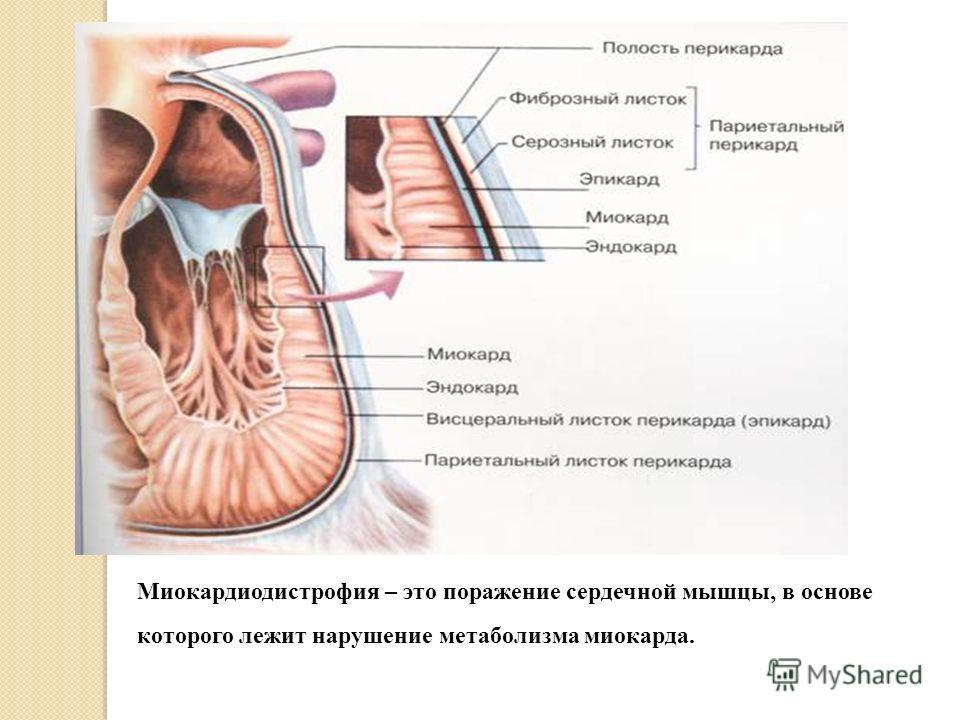 Миокардиодистрофия – это поражение сердечной мышцы, в основе которого лежит нарушение метаболизма миокарда.