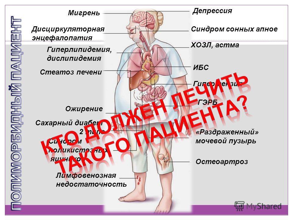 Лимфовенозная недостаточность Остеоартроз Депрессия Мигрень Дисциркуляторная энцефалопатия Синдром сонных апное ГЭРБ Гипертензия ИБС ХОЗЛ, астма «Раздраженный» мочевой пузырь Синдром поликистозных яичников Сахарный диабет 2 типа Стеатоз печени Гиперл