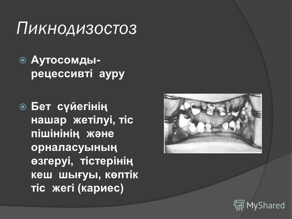 Пикнодизостоз Аутосомды- рецессивті ауру Бет сүйегінің нашар жетілуі, тіс пішінінің және орналасуының өзгеруі, тістерінің кеш шығуы, көптік тіс жегі (кариес)