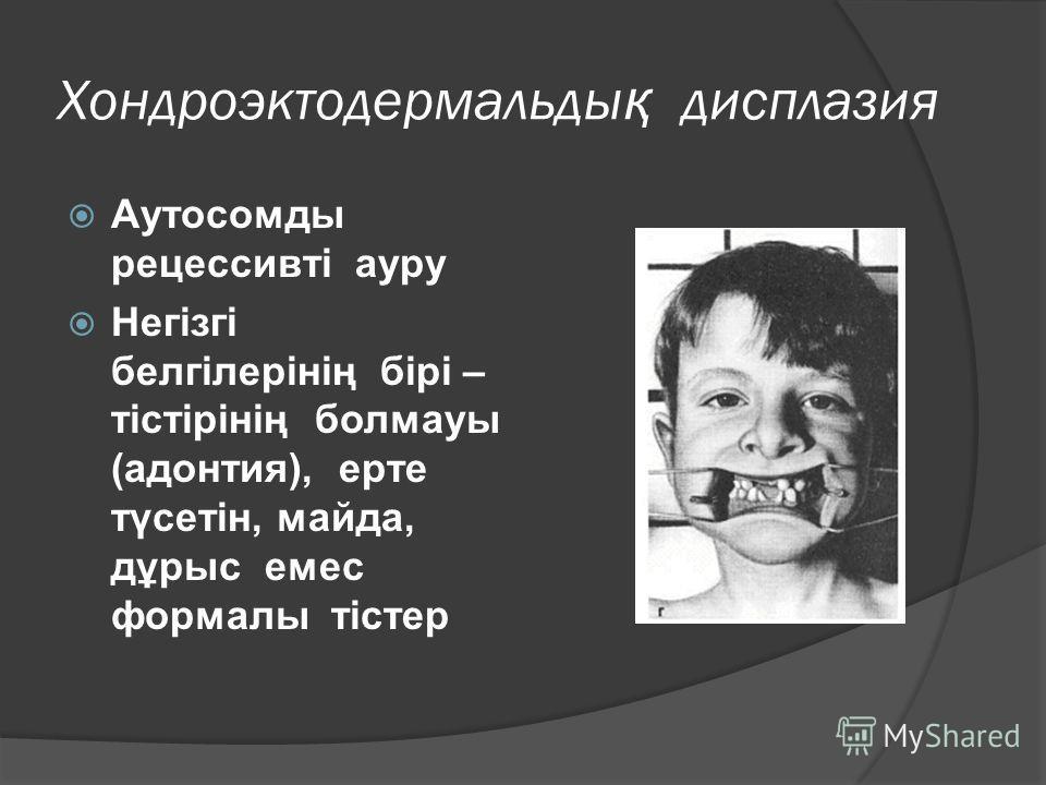 Хондроэктодермальды қ дисплазия Аутосомды рецессивті ауру Негізгі белгілерінің бірі – тістірінің болмауы (адонтия), ерте түсетін, майда, дұрыс емес формалы тістер