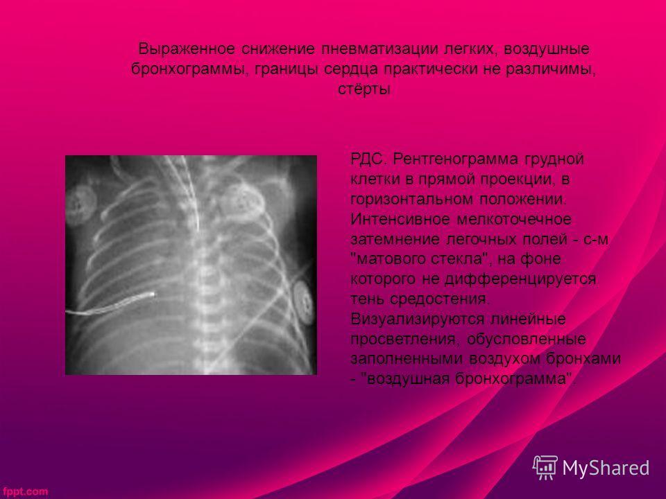 Выраженное снижение пневматизации легких, воздушные бронхограммы, границы сердца практически не различимы, стёрты РДС. Рентгенограмма грудной клетки в прямой проекции, в горизонтальном положении. Интенсивное мелкоточечное затемнение легочных полей -