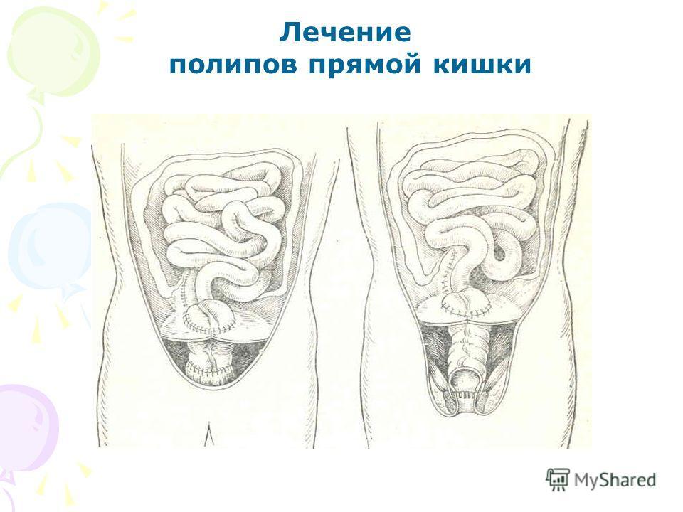 Лечение полипов прямой кишки