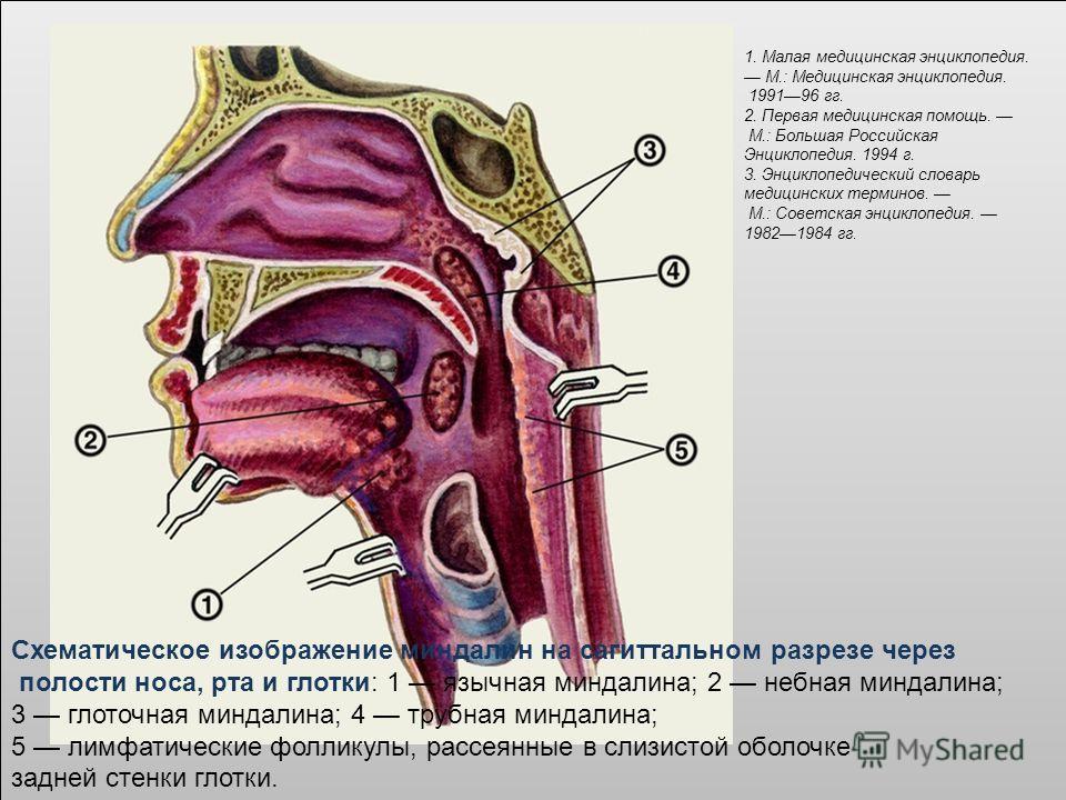Схематическое изображение миндалин на сагиттальном разрезе через полости носа, рта и глотки: 1 язычная миндалина; 2 небная миндалина; 3 глоточная миндалина; 4 трубная миндалина; 5 лимфатические фолликулы, рассеянные в слизистой оболочке задней стенки