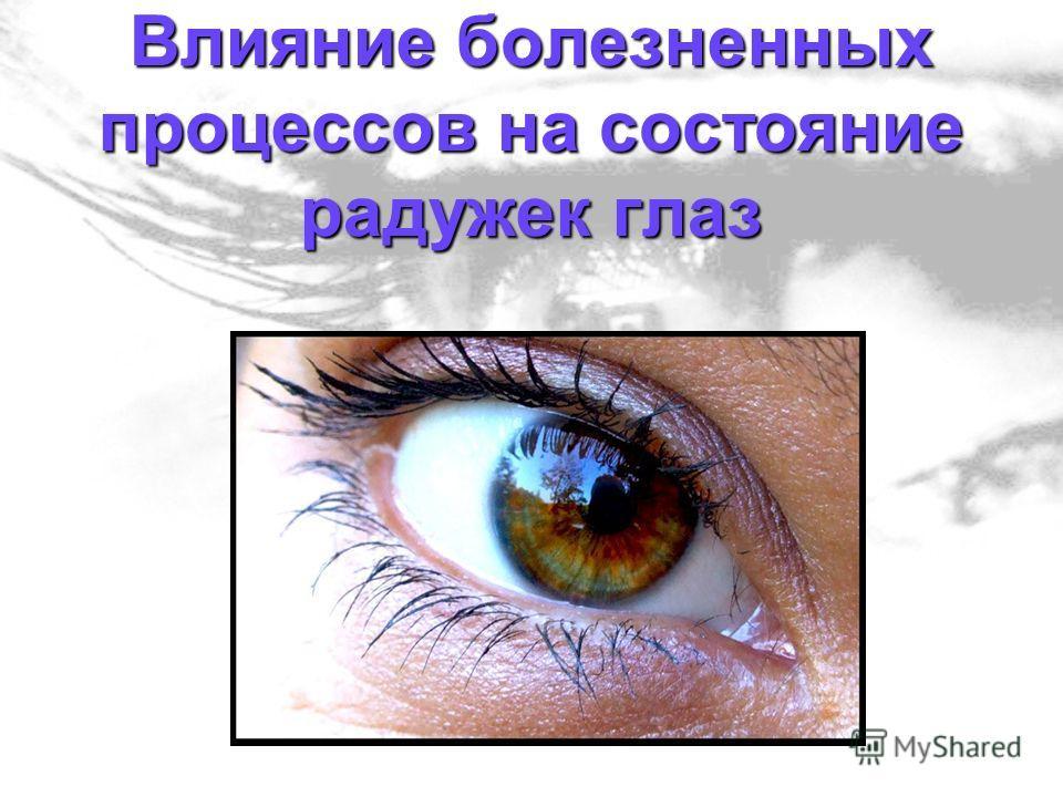 Влияние болезненных процессов на состояние радужек глаз