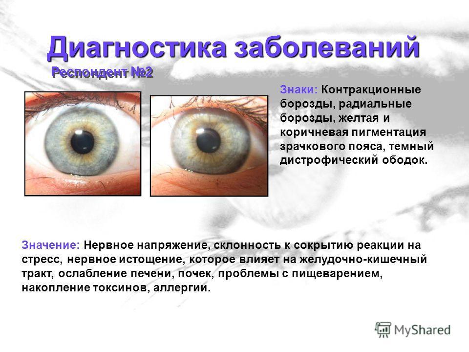 Диагностика заболеваний Респондент 2 Знаки: Контракционные борозды, радиальные борозды, желтая и коричневая пигментация зрачкового пояса, темный дистрофический ободок. Значение: Нервное напряжение, склонность к сокрытию реакции на стресс, нервное ист