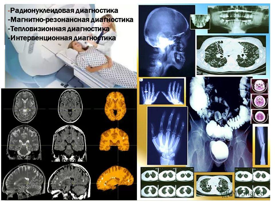 -Радионуклеидовая диагностика -Магнитно-резонансная диагностика -Тепловизионная диагностика -Интервенционная диагностика