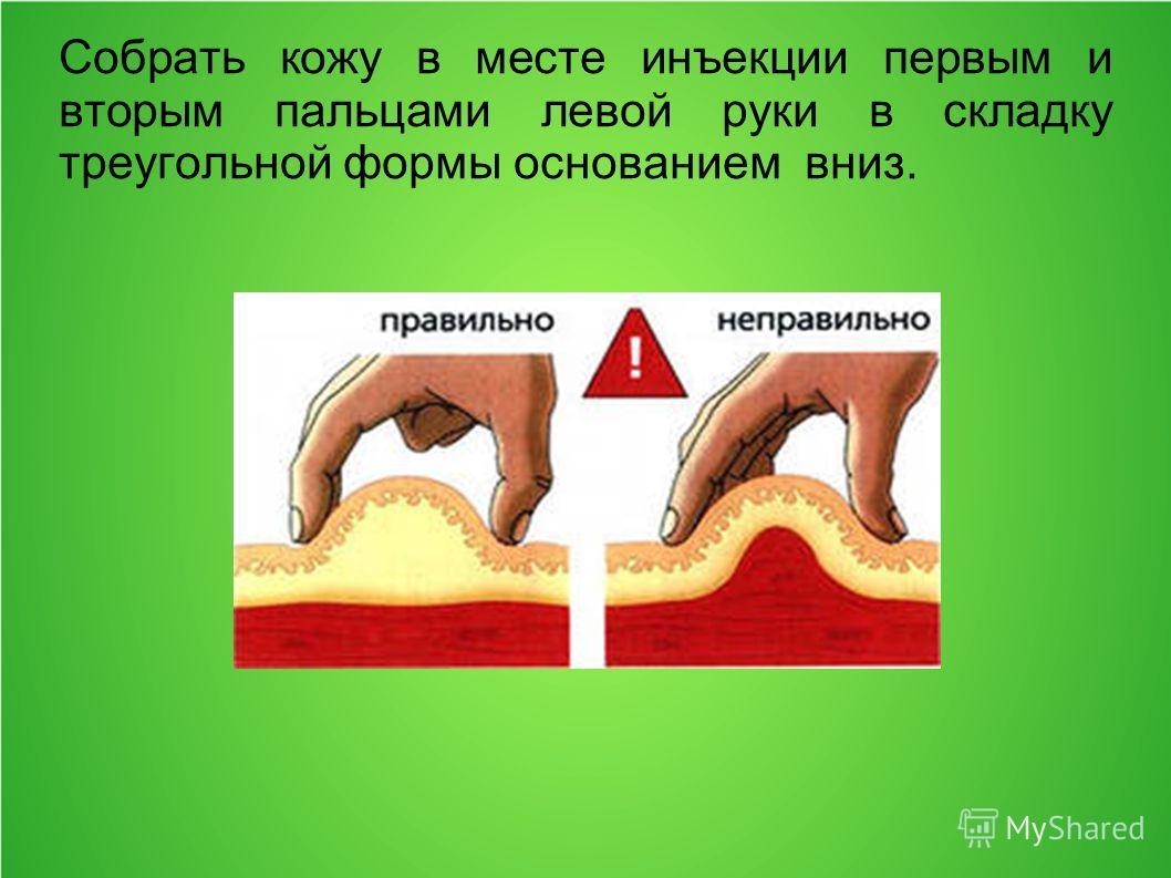Собрать кожу в месте инъекции первым и вторым пальцами левой руки в складку треугольной формы основанием вниз.