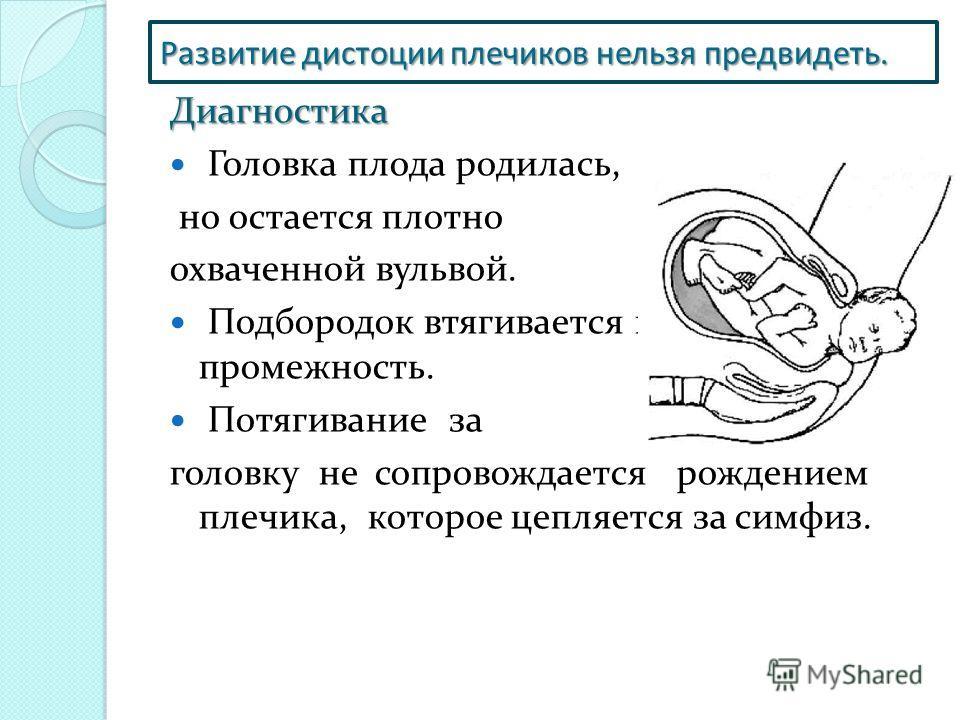 Дистоция плечиков в родах видео на русском