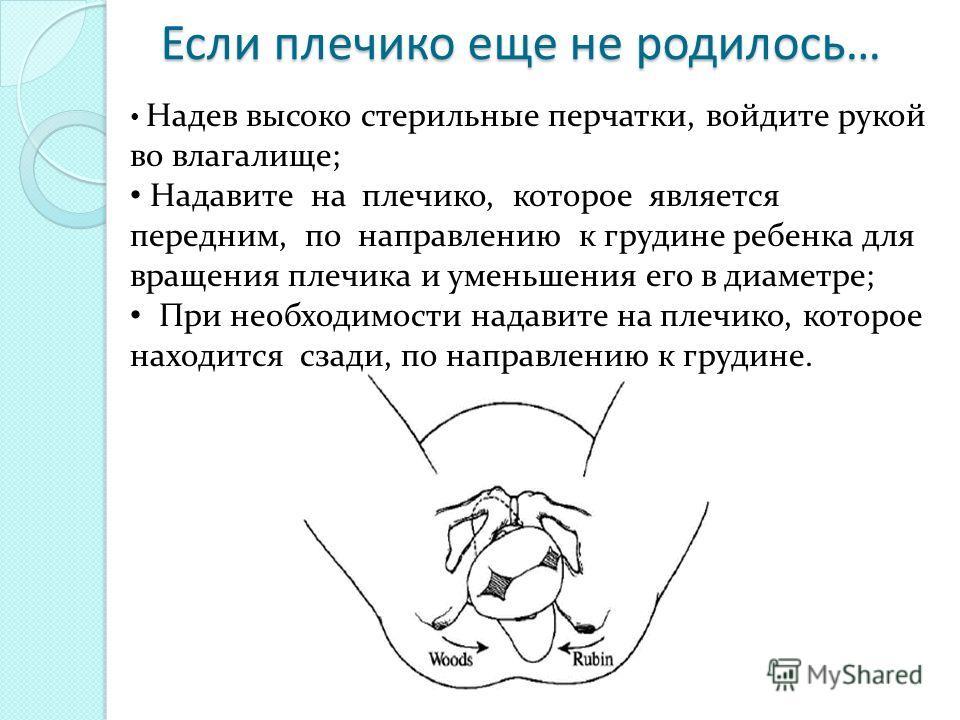 Если плечико еще не родилось… Надев высоко стерильные перчатки, войдите рукой во влагалище; Надавите на плечико, которое является передним, по направлению к грудине ребенка для вращения плечика и уменьшения его в диаметре; При необходимости надавите