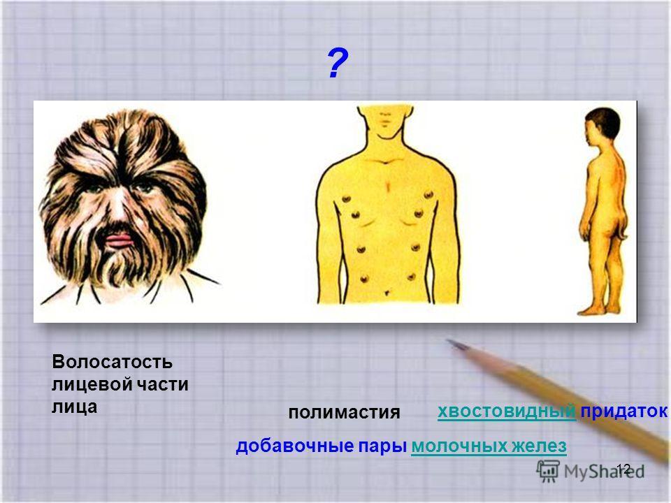 ? хвостовидныйхвостовидный придаток полимастия добавочные пары молочных железмолочных желез Волосатость лицевой части лица 12