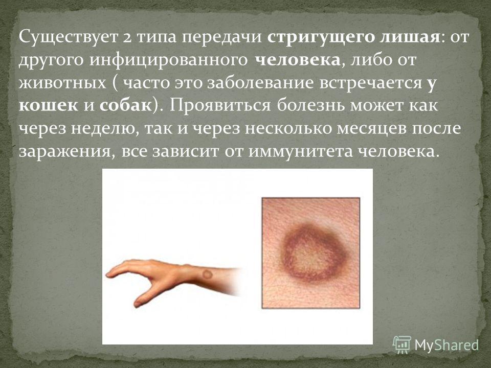 Существует 2 типа передачи стригущего лишая: от другого инфицированного человека, либо от животных ( часто это заболевание встречается у кошек и собак). Проявиться болезнь может как через неделю, так и через несколько месяцев после заражения, все зав