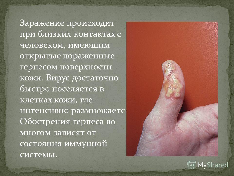 Заражение происходит при близких контактах с человеком, имеющим открытые пораженные герпесом поверхности кожи. Вирус достаточно быстро поселяется в клетках кожи, где интенсивно размножается. Обострения герпеса во многом зависят от состояния иммунной