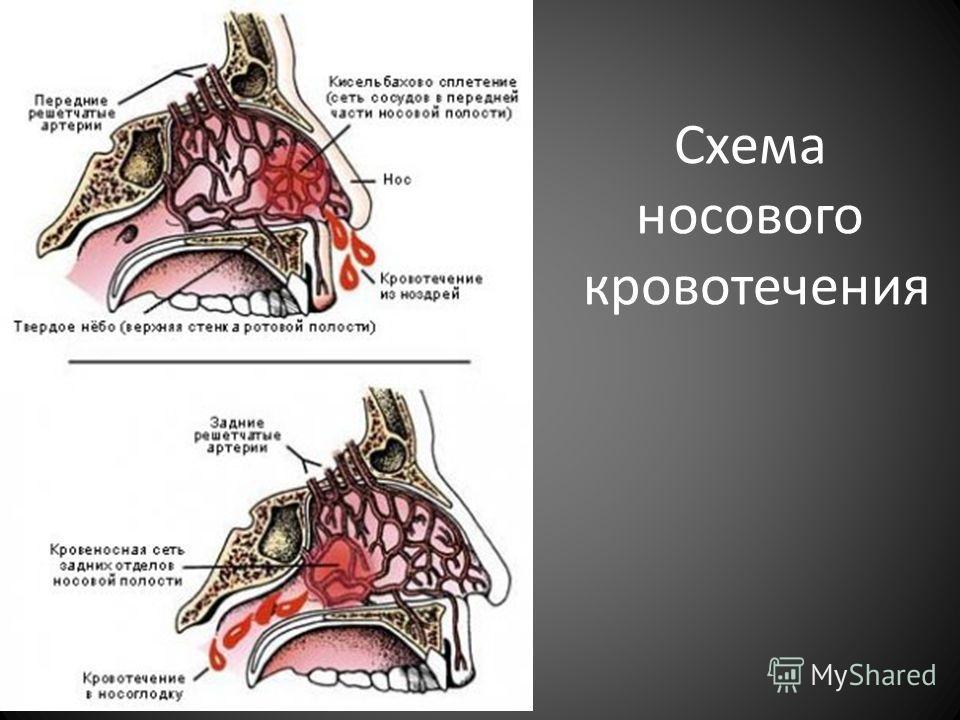 Первая медицинская помощь при паренхиматозном(внутреннем) кровотечении предусматривает покой и охлаждение зоны травмирования Окончательная остановка паренхиматозного кровотечения проводится во время хирургической операции
