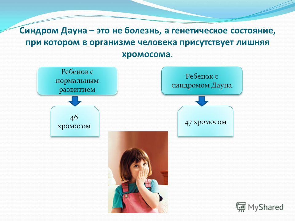 Синдром Дауна – это не болезнь, а генетическое состояние, при котором в организме человека присутствует лишняя хромосома. Ребенок с нормальным развитием Ребенок с синдромом Дауна 46 хромосом 47 хромосом
