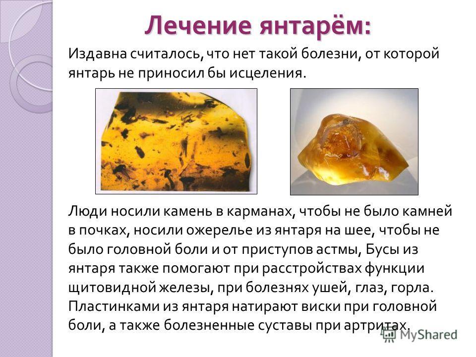 Лечение янтарём : Издавна считалось, что нет такой болезни, от которой янтарь не приносил бы исцеления. Люди носили камень в карманах, чтобы не было камней в почках, носили ожерелье из янтаря на шее, чтобы не было головной боли и от приступов астмы,