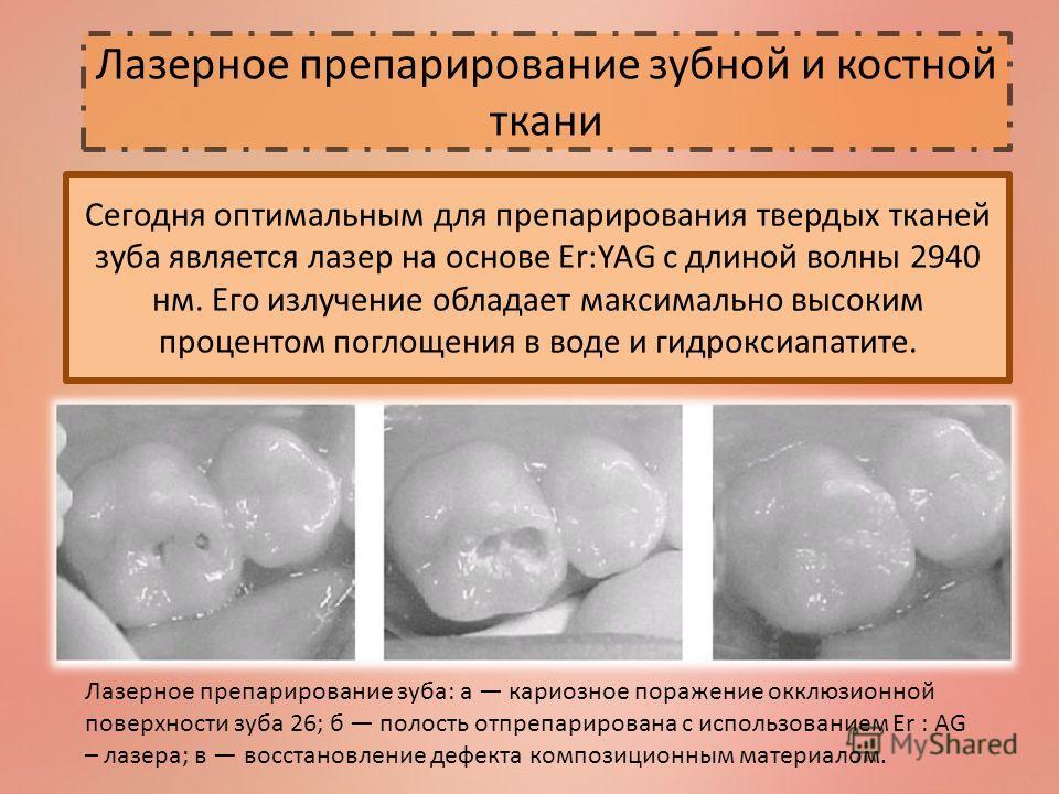 Лазерное препарирование зубной и костной ткани Сегодня оптимальным для препарирования твердых тканей зуба является лазер на основе Er:YAG с длиной волны 2940 нм. Его излучение обладает максимально высоким процентом поглощения в воде и гидроксиапатите
