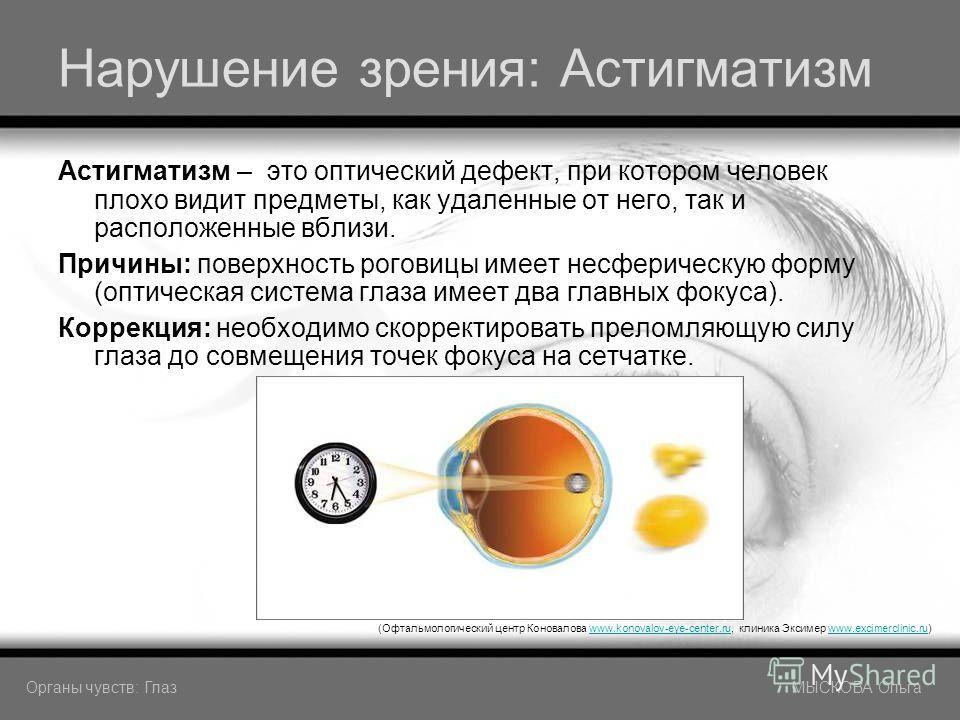 Нарушение зрения: Астигматизм Астигматизм – это оптический дефект, при котором человек плохо видит предметы, как удаленные от него, так и расположенные вблизи. Причины: поверхность роговицы имеет несферическую форму (оптическая система глаза имеет дв