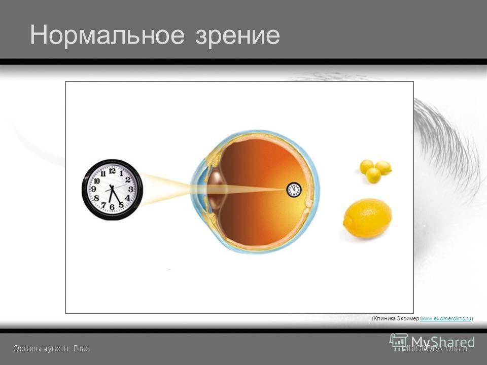 Нормальное зрение (Клиника Эксимер www.excimerclinic.ru)www.excimerclinic.ru Органы чувств: Глаз МЫСКОВА Ольга