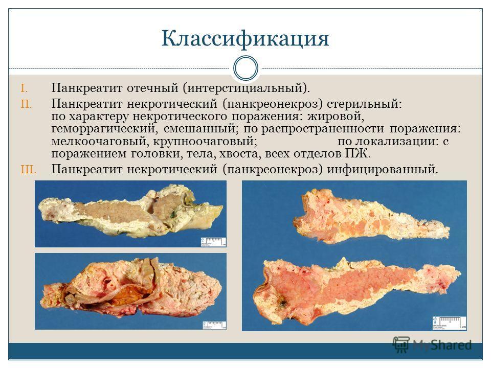 Классификация I. Панкреатит отечный (интерстициальный). II. Панкреатит некротический (панкреонекроз) стерильный: по характеру некротического поражения: жировой, геморрагический, смешанный; по распространенности поражения: мелкоочаговый, крупноочаговы