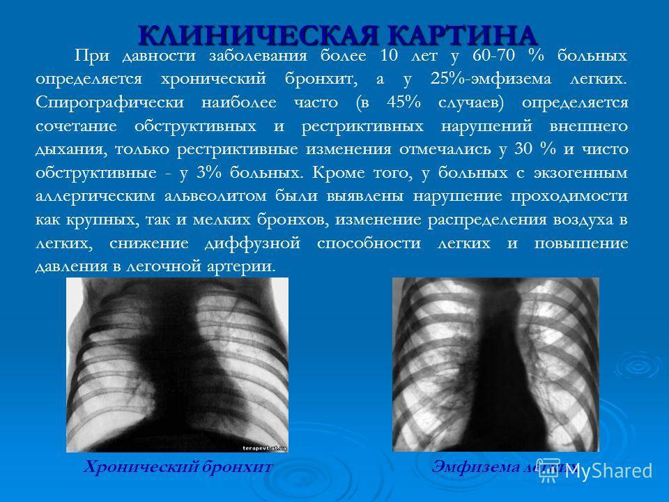 КЛИНИЧЕСКАЯ КАРТИНА При давности заболевания более 10 лет у 60-70 % больных определяется хронический бронхит, а у 25%-эмфизема легких. Спирографически наиболее часто (в 45% случаев) определяется сочетание обструктивных и рестриктивных нарушений внешн