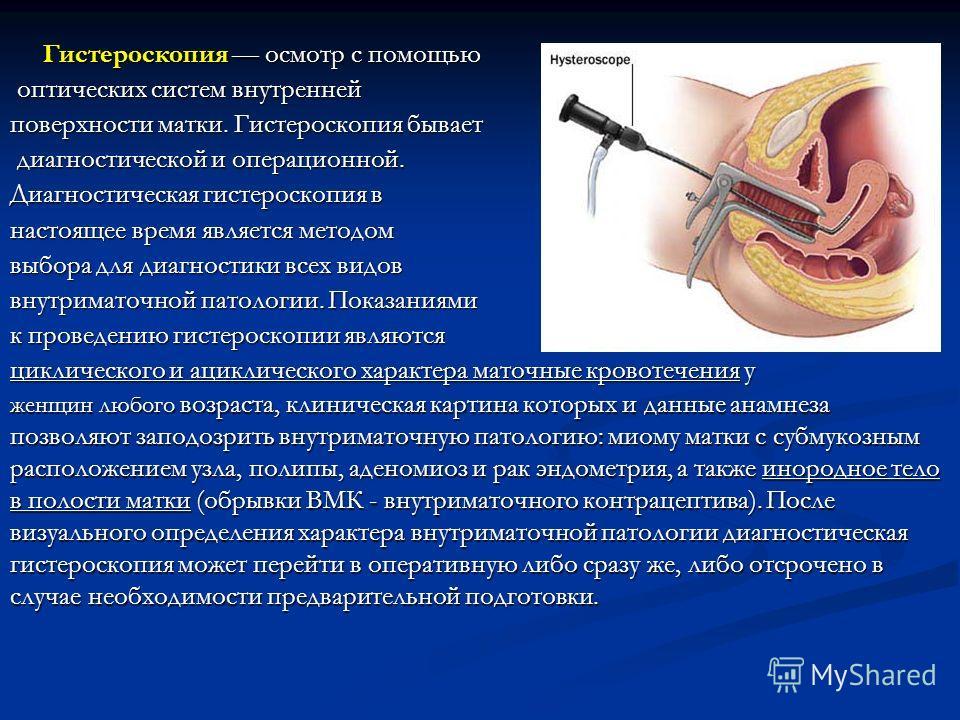 Гистероскопия осмотр с помощью Гистероскопия осмотр с помощью оптических систем внутренней оптических систем внутренней поверхности матки. Гистероскопия бывает диагностической и операционной. диагностической и операционной. Диагностическая гистероско