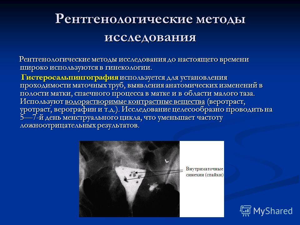 Рентгенологические методы исследования Рентгенологические методы исследования до настоящего времени широко используются в гинекологии. Рентгенологические методы исследования до настоящего времени широко используются в гинекологии. Гистеросальпингогра