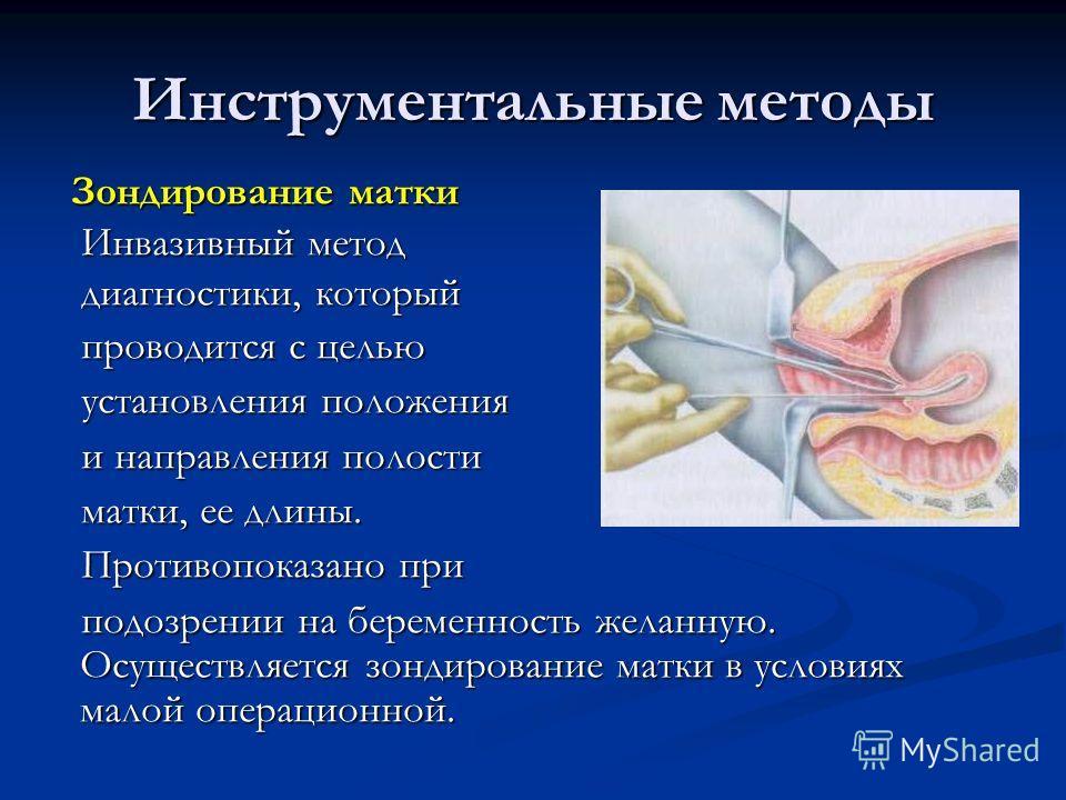 Инструментальные методы Зондирование матки Зондирование матки Инвазивный метод Инвазивный метод диагностики, который диагностики, который проводится с целью проводится с целью установления положения установления положения и направления полости и напр