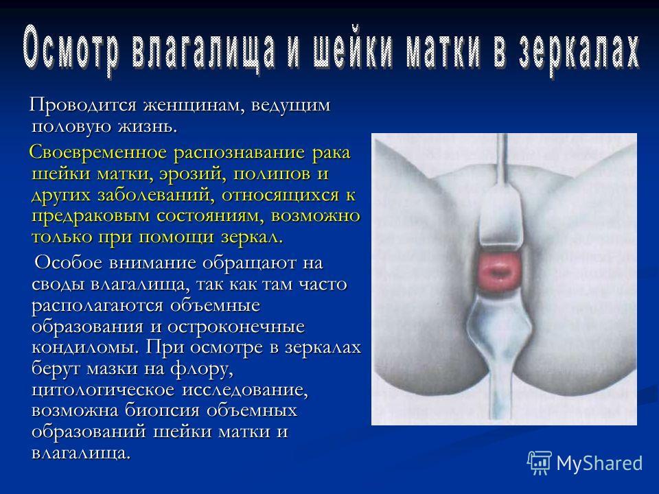 Проводится женщинам, ведущим половую жизнь. Проводится женщинам, ведущим половую жизнь. Своевременное распознавание рака шейки матки, эрозий, полипов и других заболеваний, относящихся к предраковым состояниям, возможно только при помощи зеркал. Своев