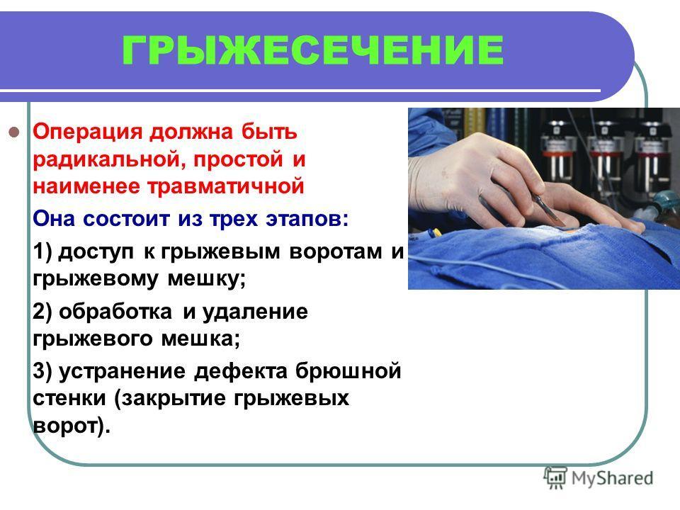 ГРЫЖЕСЕЧЕНИЕ Операция должна быть радикальной, простой и наименее травматичной Она состоит из трех этапов: 1) доступ к грыжевым воротам и грыжевому мешку; 2) обработка и удаление грыжевого мешка; 3) устранение дефекта брюшной стенки (закрытие грыжевы
