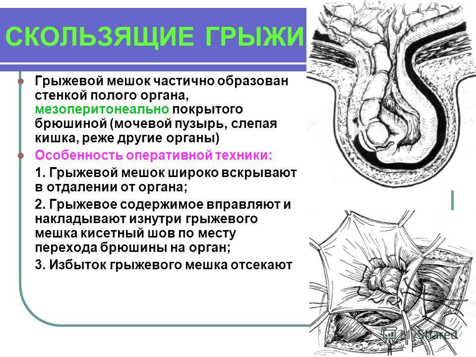 СКОЛЬЗЯЩИЕ ГРЫЖИ Грыжевой мешок частично образован стенкой полого органа, мезоперитонеально покрытого брюшиной (мочевой пузырь, слепая кишка, реже другие органы) Особенность оперативной техники: 1. Грыжевой мешок широко вскрывают в отдалении от орган